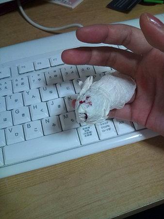 指、切った2